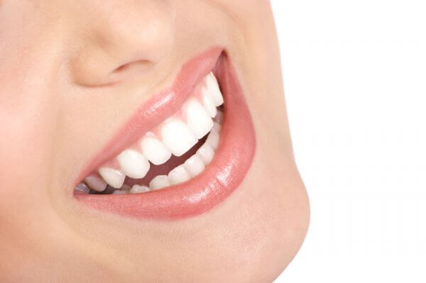 take-home teeth whitening